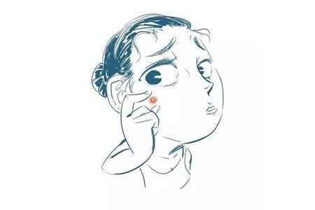 我的脸上长了很多痘痘怎么办啊