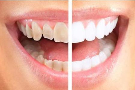 牙齿有点黄什么方法美白效果比较好