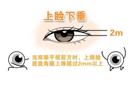 上眼皮轻度下垂要如何矫正比较快
