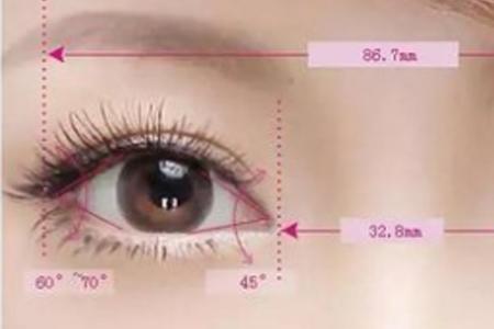 上海做开眼角手术费用多少钱