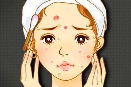脸上有痘做激光真的可以去除吗