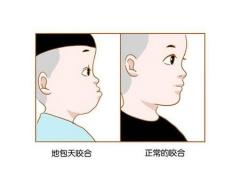牙齿矫正什么年龄比较好