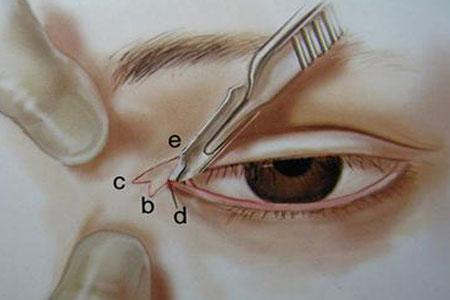 开眼角整形手术会不会很疼啊