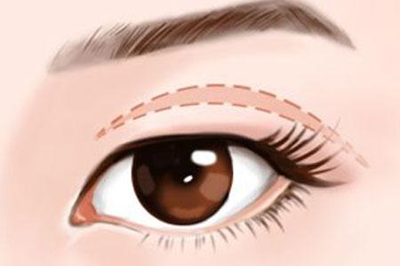 韩式双眼皮和全切双眼皮哪种效果更好