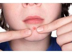 脸上的痘痘真的可以通过激光去除吗