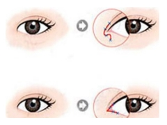 开眼角整形术后眼睛会变大变好看吗