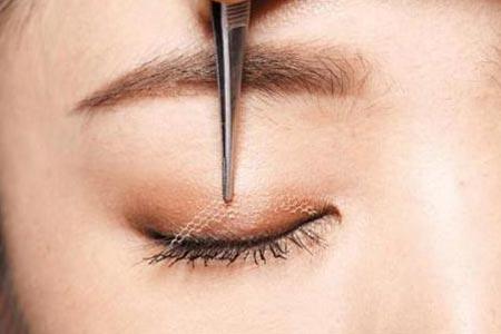 先天性的眼睑下垂可以治好吗