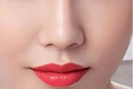 做假体隆鼻整形手术选择什么材料比较好
