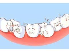 多大年龄适合牙齿矫正