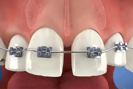 快速矫正牙齿的方法有哪些