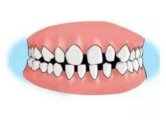 上海做牙齿矫正价格多少钱