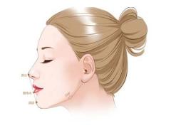 自体软骨隆鼻手术好处有哪些