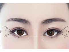 做韩式双眼皮整形手术恢复的快吗
