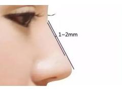 自体软骨隆鼻手术有哪些优势