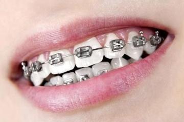 牙齿矫正的较佳年龄