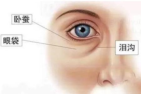 眼袋很严重要怎么才能消除啊