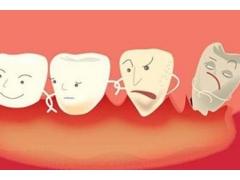 做牙齿矫正的时候会不会很痛啊