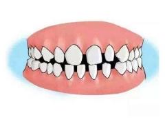 做牙齿矫正手术到底安不安全