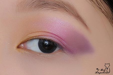双眼皮手术失败了可以重新割吗