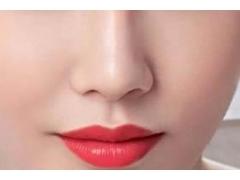 在上海做假体隆鼻整形手术大概需要多少钱