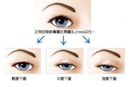 上海做眼睑下垂矫正手术价格怎么样