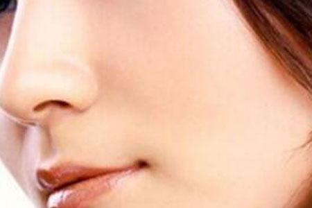 缩小鼻孔手术大概要多少钱