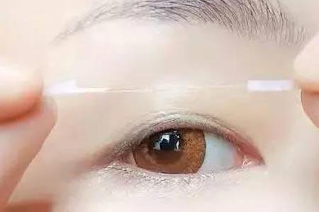 做埋线双眼皮整形手术安不安全啊