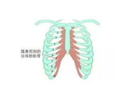 做自体软骨隆鼻整形手术效果可以保持多久