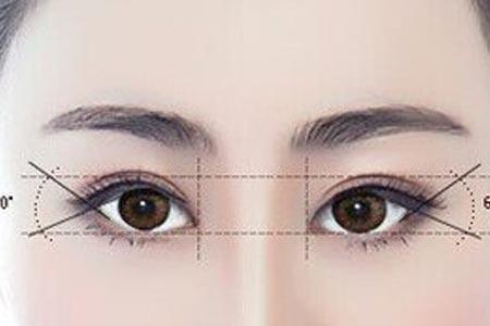 上海开眼角手术要多少钱