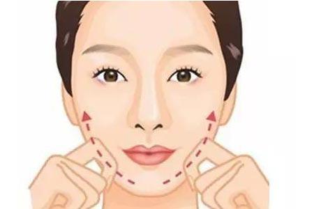 面部吸脂手术瘦脸效果好吗