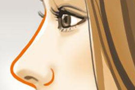 膨体隆鼻术后多少天能消肿啊