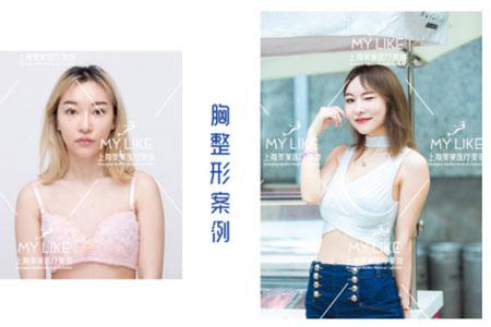 上海美莱新宣颜,胸部整形模特新秀0元案例招募
