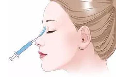 注射玻尿酸隆鼻能维持多长时间