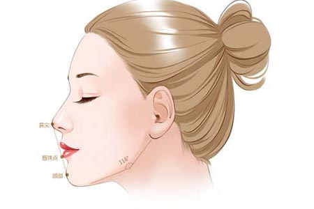 膨体隆鼻后大概需要多久才能消肿