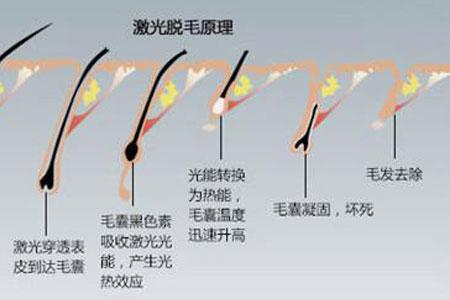 激光脱腋毛术后需要注意什么