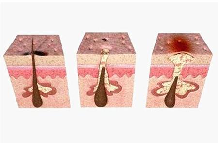 简单快速有效的祛痘方法有哪些