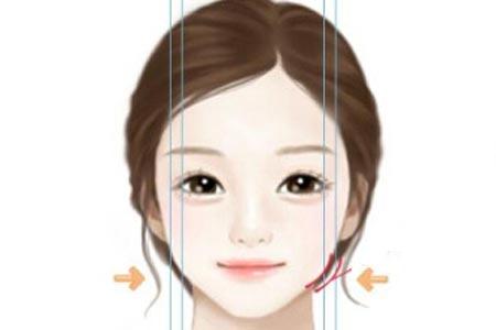 面部吸脂瘦脸术后要多久才能消肿