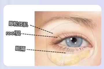 肿泡眼做出来的双眼皮是什么样呢?