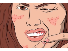 激光祛痘到底是怎么祛痘的