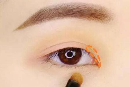 做去眼袋手术治疗一般需要多少钱