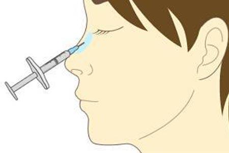 玻尿酸注射隆鼻后会变宽吗