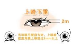上海做上睑下垂矫正手术一般多少钱