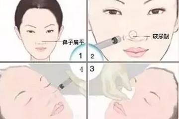 玻尿酸注射隆鼻会让鼻子变宽?