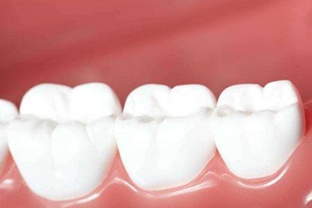 洗牙到底安不安全,会不会伤害牙齿