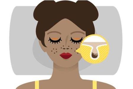 有什么方法可以改善毛孔粗大问题