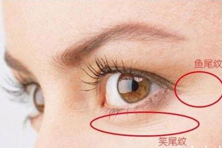 【拜托了,医生 】眼周围长了很多小细纹怎么办