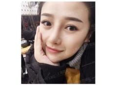 上海美莱-隆鼻案例分享-让美丽更持久