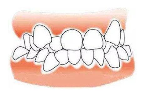 在上海矫正牙齿要多少钱