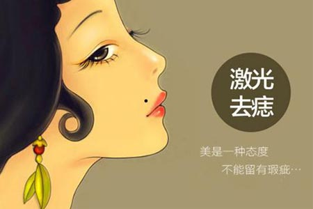 上海美莱激光点痣多少钱一颗