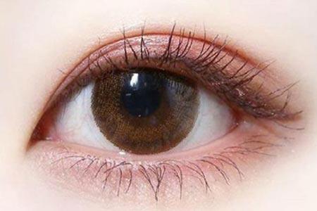 天生单眼皮怎么变双眼皮